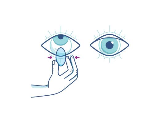Apretando suavemente el lente para quitar la lente de contacto