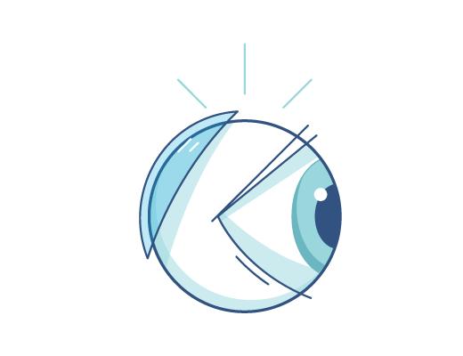 Contactos detrás de un globo ocular