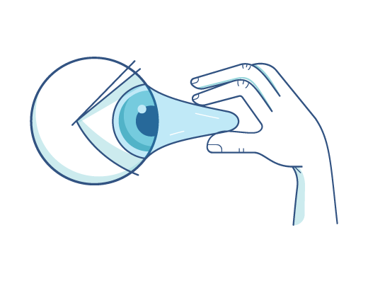 Sacando un lente de contacto del ojo
